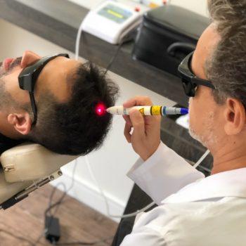 Homens de 30: enfrentando a calvície com terapia capilar!
