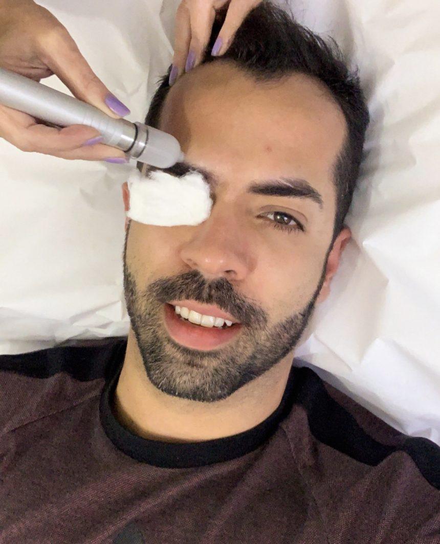 Peeling de Cristal é um super aliado na produção de colágeno e renovação da pele facial