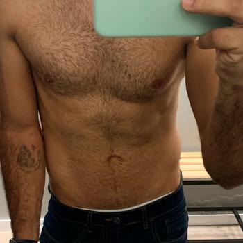 Homem: cueca e calça apertada podem evidenciar a localizada do abdômen