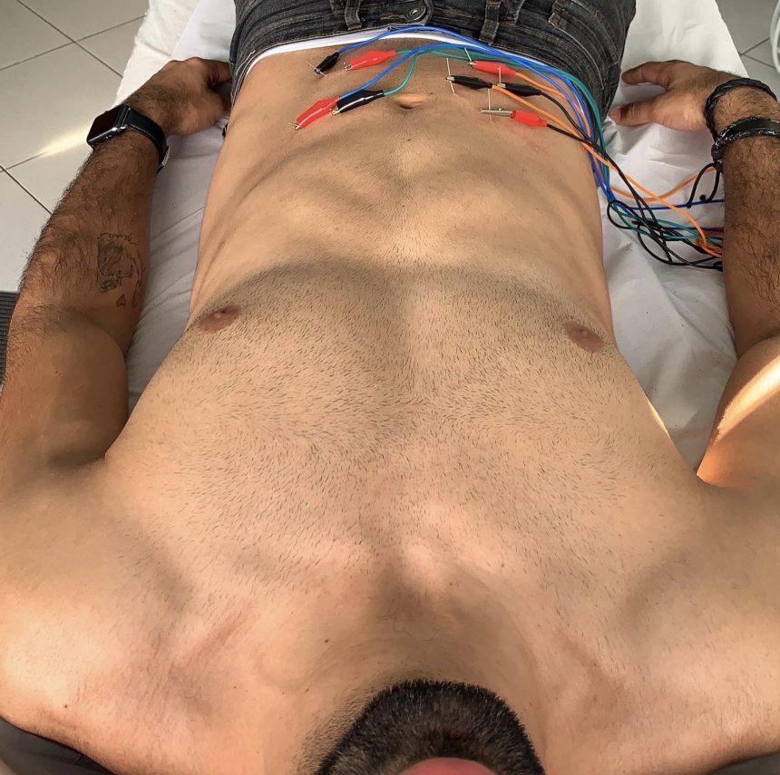 Eletrolipólise? Um tratamento gordura localizada