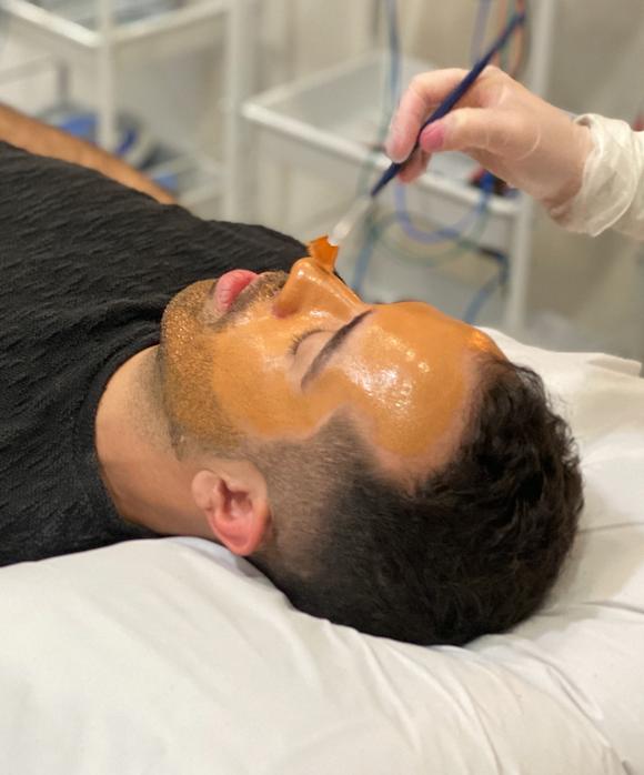 Peeling Químico: Rejuvenescimento para o homem vaidoso