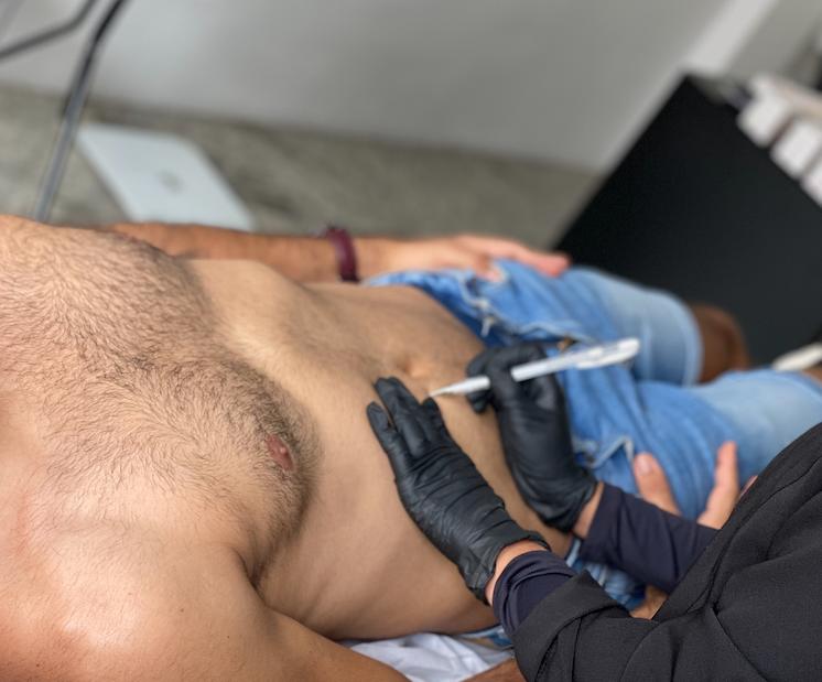 Três procedimentos para o homem que quer perder gordura localizada