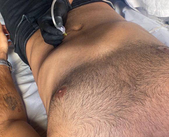 Carboxiterapia: Gás carbônico para reduzir a gordura e flacidez masculina