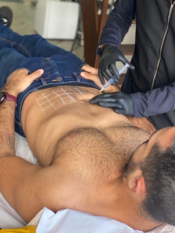 HIDROFAT: Um procedimento confortável para eliminar a gordura localizada