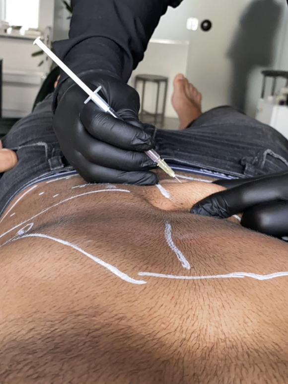 Quatro procedimentos para o homem que quer reduzir a gordura localizada