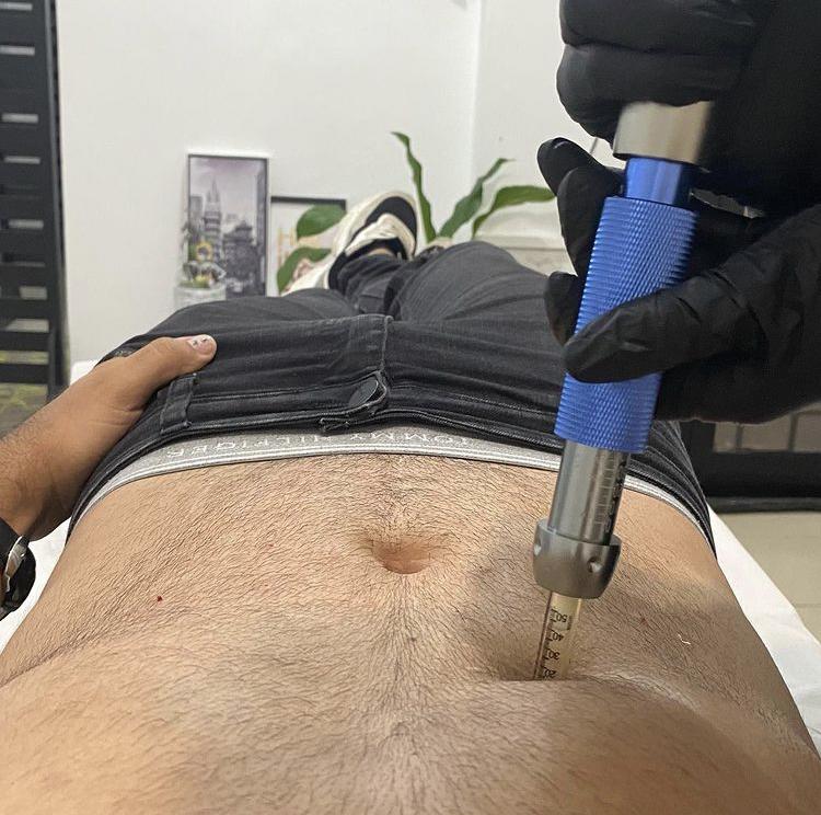 Três procedimentos que combatem a flacidez